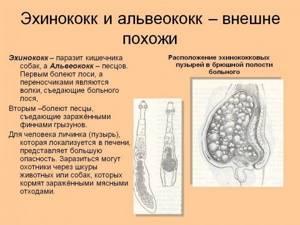 Альвеококкоз: пути заражения, симптомы и возможные осложнения, этапы лечения и профилактические меры
