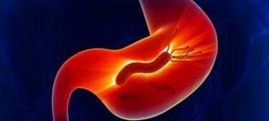 Бульбит двенадцатиперстной кишки: источники проблемы, сопутствующие признаки и методы лечения