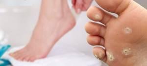 Что такое подошвенные бородавки: описание патологии, причины появления новообразования и характерные симптомы, методы лечения в домашних условиях и медицинских учреждениях
