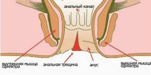 Лечение анальной трещины: разновидности повреждений слизистой оболочки и проявления патологии, использование лекарственных препаратов в домашних условиях и применение народных средств