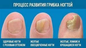 Какой лак от грибка ногтей на ногах лучше: обзор популярных препаратов и технология нанесения, состав и принцип действия средств, цены в аптеке