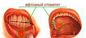 Стоматит: причины, клиническая картина и особенности лечения