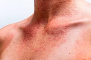 Аллергический васкулит: предрасполагающие факторы развития заболевания и методы профилактики, лечение народными и аптечными средствами, отзывы пациентов