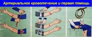 Как оказывать первую помощь при кровотечениях