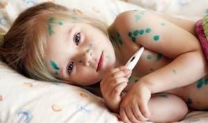 Ветрянка у детей: инкубационный период, первые признаки и симптомы заболевания, лечение в домашних условиях
