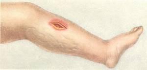 Анаэробная инфекция в хирургии: причины развития, клинические проявления, диагностические меры и подходы к лечению