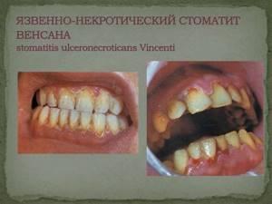Стоматит у взрослых: виды и особенности заболевания, методы лечения в домашних условиях аптечными препаратами и народными средствами, правила профилактики