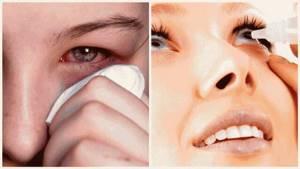 Лечение ячменя на глазу за 1 день в домашних условиях: лучшие препараты и народные рецепты
