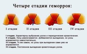 Свечи от геморроя Проктозан: действующее вещество и состав, как действует на организм, показания к применению и побочные эффекты