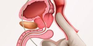 Можно ли вылечить хронический простатит в домашних условиях: принцип лечения медикаментами и народными средствами, роль физиопроцедур и трансректального массажа для улучшения состояния, отзывы пациентов