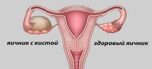 Киста желтого тела яичника: провоцирующие факторы, характерные признаки и методы лечения
