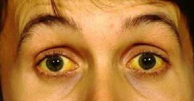 Чем опасен синдром Жильбера: провоцирующие факторы, характерные симптомы и признаки, профилактические меры и правила питания