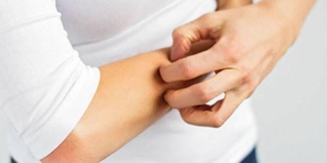 Череда: лечебные свойства и противопоказания