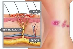 Опоясывающий лишай: причины, симптомы и лечение