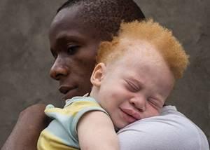 Альбинизм у человека: причины и признаки заболевания, возможные осложнения и профилактические меры