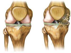 Первые симптомы артрита коленного сустава: степени и формы заболевания, основные признаки патологии, медикаментозная терапия и лечебные приспособления