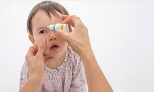 Чем лечить конъюнктивит у детей в домашних условиях: разновидности заболевания, причины появления и клинические симптомы, методы терапии и правила профилактики