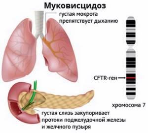 Муковисцидоз: причины патологии, стадии развития, диагностика и терапевтические меры