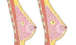 Как лечить кисту молочной железы: причины патологии, консервативные и народные методы лечения