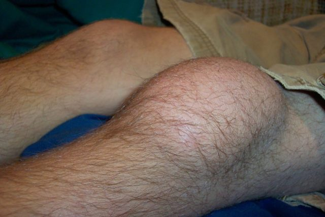 Синовит коленного сустава: классификация и формы заболевания, способы лечения, прогноз и профилактика