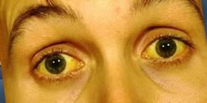 Юнидокс солютаб: состав препарата и механизм действия, инструкция по применению и дозировка для детей и взрослых при различных видах заболеваний, противопоказания к употреблению