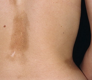 Склеродермия: причины и разновидности недуга, характерные признаки, способы лечения и профилактика