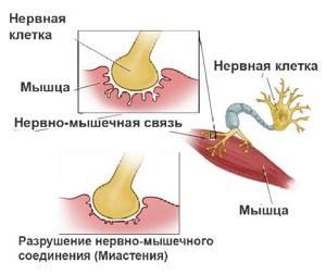 Миастения: источники проблемы, сопутствующие признаки и способы лечения