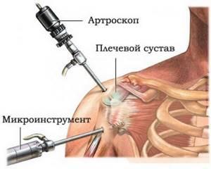 Как лечить плечелопаточный периартрит в домашних условиях: аптечные и народные средства, комплекс упражнений
