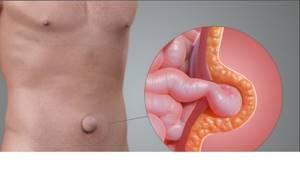 Пупочная грыжа: факторы развития болезни, клинические проявления, способы лечения и профилактические меры