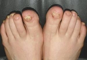 Лечение грибка ногтей народными средствами: причины возникновения и рейтинг лучших рецептов для домашнего использования, советы докторов