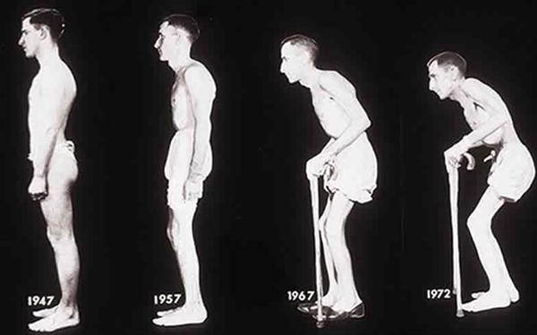Болезнь Бехтерева: что это такое, причины развития и симптомы патологии, особенности лечения заболевания у мужчин и женщин в домашних условиях
