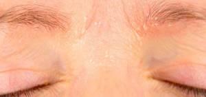 Себорейный дерматит: симптомы и лечение