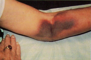 Болезнь Виллебранда: что это, причины и формы заболевания, первые признаки, современная диагностика и лечение болезни