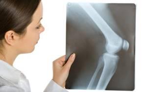 Гигрома: что это такое, фото заболевания, методы лечения и вероятность операции, прогноз и советы специалистов