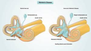 Болезнь Меньера: причины возникновения и степени заболевания, симптомы и способы лечения