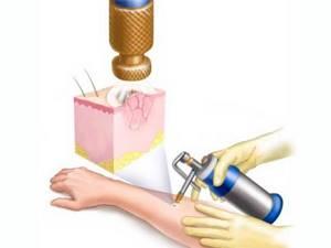 Базалиома: причины появления, характерные признаки, диагностика и способы лечения