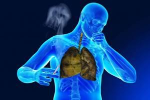 ХОБЛ (хроническая обструктивная болезнь легких): классификация и причины развития, симптоматика и варианты лечения