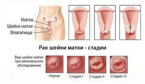 Что такое киста шейки матки: особенности патологии, причины образования и факторы риска, традиционные и народные методы терапии, профилактика рецидивов