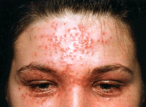 Саркома Капоши: причины и распространение болезни, сопутствующие симптомы и методы лечения