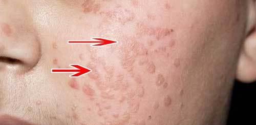 Вирус папилломы человека у женщин: причины возникновения, признаки инфекции и методы лечения