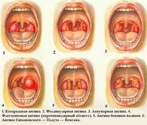 Фолликулярная ангина: симптомы, причины и лечение