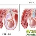 Водянка яичка: симптомы и способы лечения мужской патологии, опасности самолечения, советы специалистов