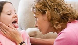 Чем лечить ангину дома: причины возникновения и разновидности болезни, общие принципы лечения и советы народной медицины