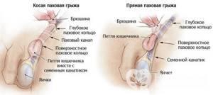 Паховая грыжа у взрослых и детей: причины возникновения и факторы риска, формы заболевания и клинические симптомы, варианты лечения