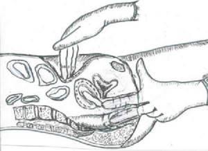 Первые симптомы аппендицита у женщин: особенности проявления и клиническая картина, причины патологии и возможные осложнения заболевания