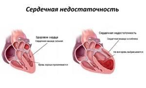 Как лечить сердечную недостаточность: эффективные народные средства, инструкция по применению