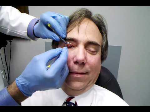 Что такое халязион: причины появления образования, классификация и стадии течения патологии, характерные симптомы и методы лечения, профилактика рецидивов