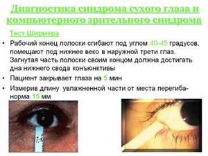 Синдром сухого глаза: причины проблемы, лечение аптечными и народными средствами, профилактические меры
