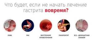 Хронический гастрит, лечение болезни в домашних условиях.