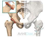 Артроз тазобедренного сустава: причины и симптомы заболевания, диагностика, лечение без операции и диета